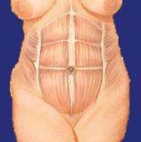 Muskeln der Bauchdecke