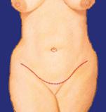 Bauchdecke von vorne