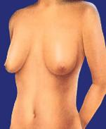 Bruststraffung vorher