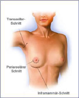 Hautschnitte bei der Brustvergrößerung