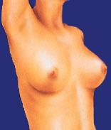 Brustvergrößerung nachher