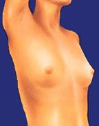 Brustvergrößerung vorher