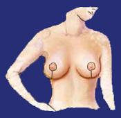 Brustverkleinerung nachher