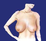 Brustverkleinerung vorher