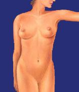 Fettabsaugung bei der Frau, nachher