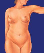 Fettabsaugung bei der Frau, vorher