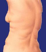 Fettabsaugung am Rücken, vorher