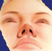 Resultat bei der Nasenkorrektur