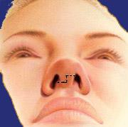 Hautschnitte bei der Nasenkorrektur