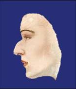 Nasenkorrektur vorher